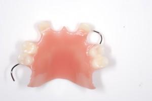 acryclic partial dentures
