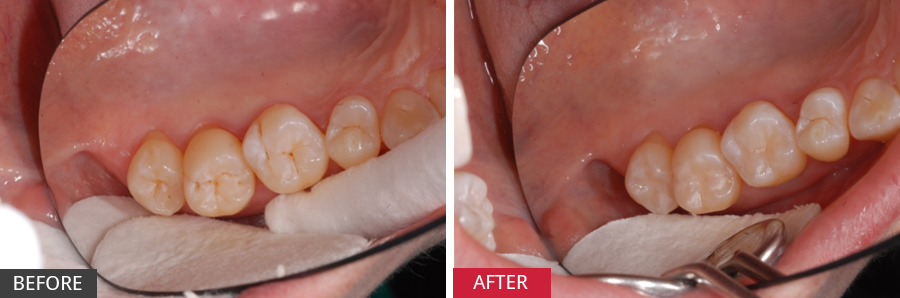 Case Study: Pit & Fissure Tooth Decay