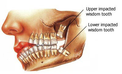 wisdom-teeth-removal-auckland